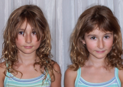 Hair Balancing noticeably changed this young client's appearance