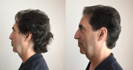 Rouel's Profile before & after